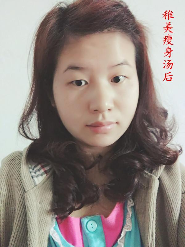 稚美创造汤总代理-叶柳瘦身瘦身奇迹-青青岛社怎黱瘦脸图片